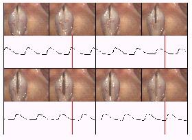 images showing vocal fold vibration